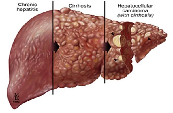 hepatitis-clivers fucked